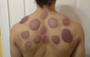 Cupping-Picture-1
