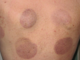 Cupping-pic-from-google